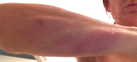 Bruises on Brenneman's arm from another attack by men sent by Isgitt.(Photo via Amanda Brooks' blog, courtesy of Jill Brenneman and Amanda Brooks)